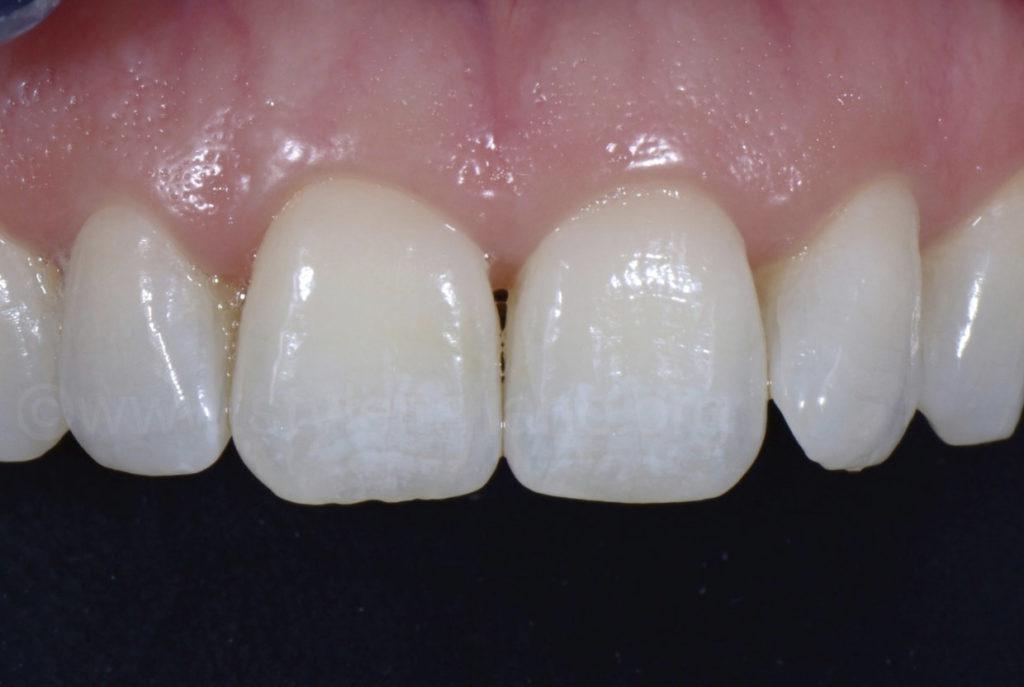 fluorisis white spots on teeth
