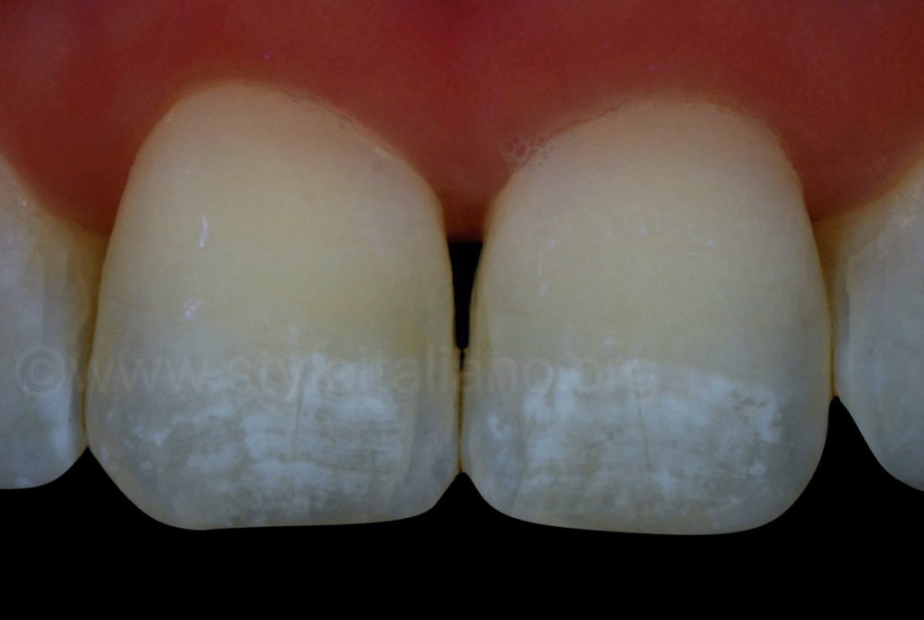 cross polarised picture of white spots on incisors