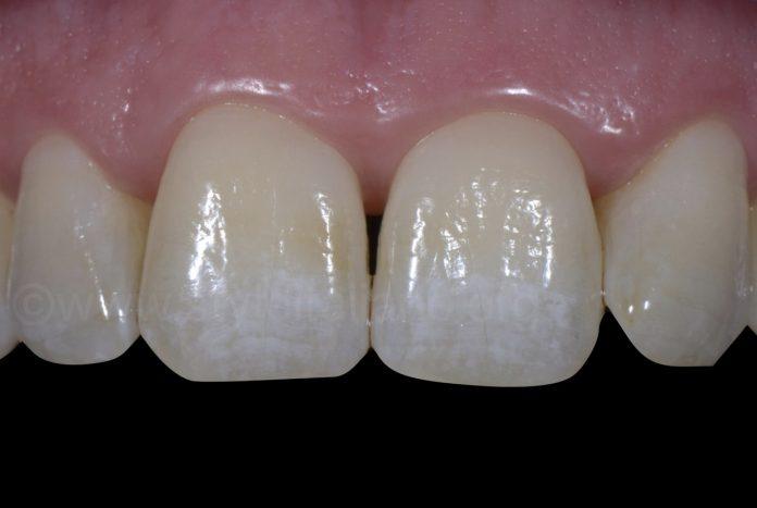 fluorisis white spots on upper incisors