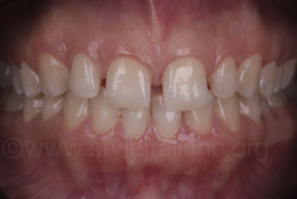 intraoral picture of diastema