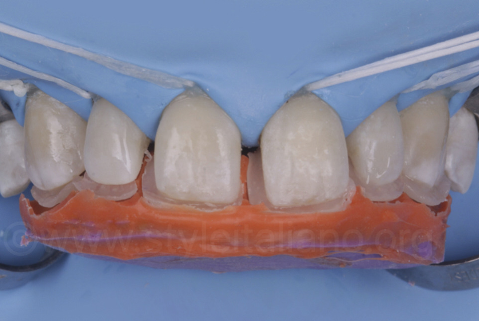 silicone key for palatal composite shell