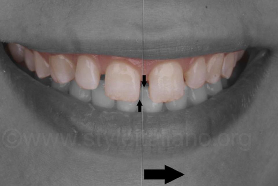 smile midline deviation