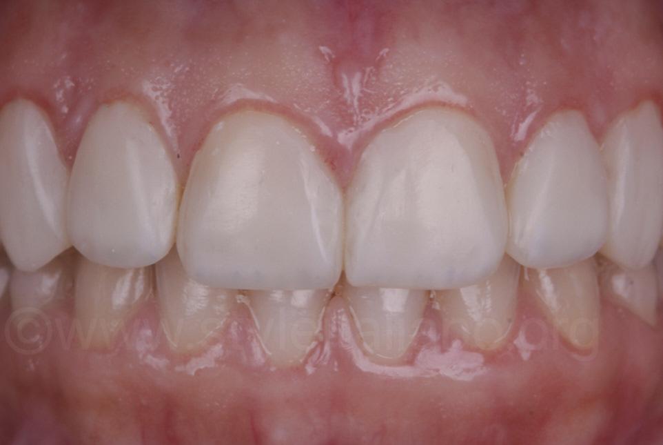 direct white veneers on teeth
