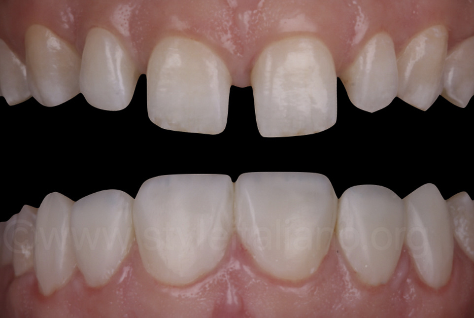 before and after direct composite veneers