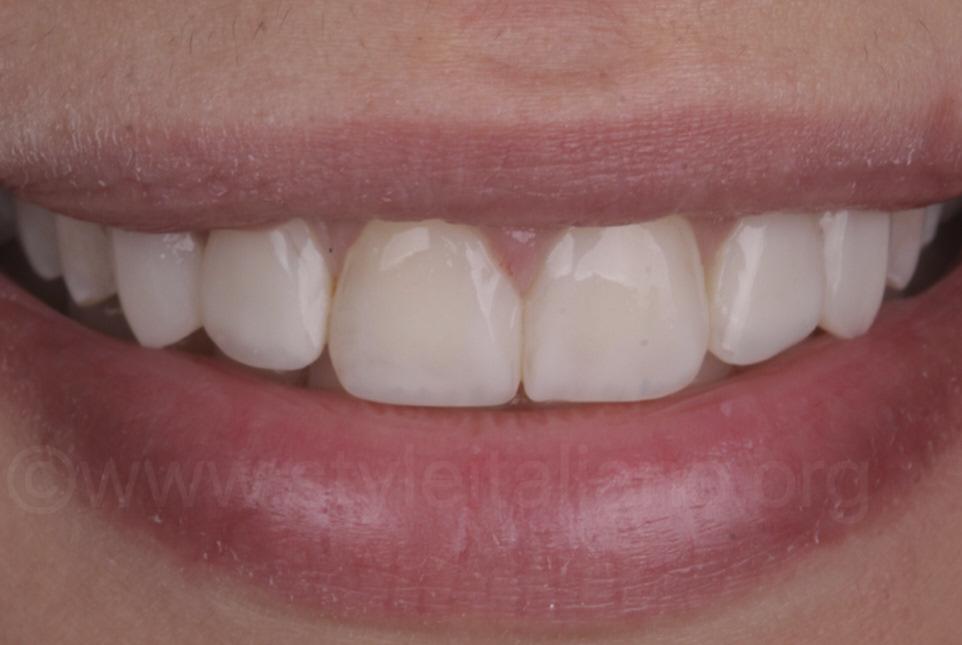 result after smile makeover