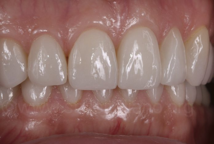 teeth after full mouth rehab