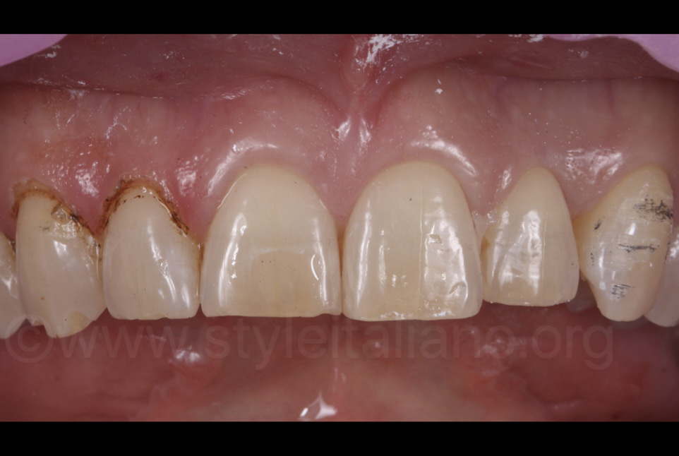 minimally invasive preparation in enamel