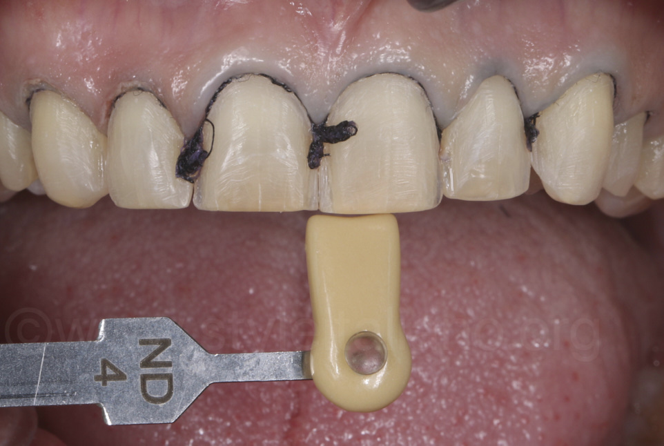 basic shade matching and retraction cord