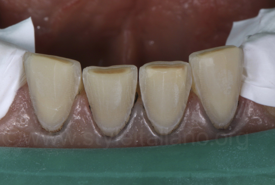 enamel preparation lower incisors