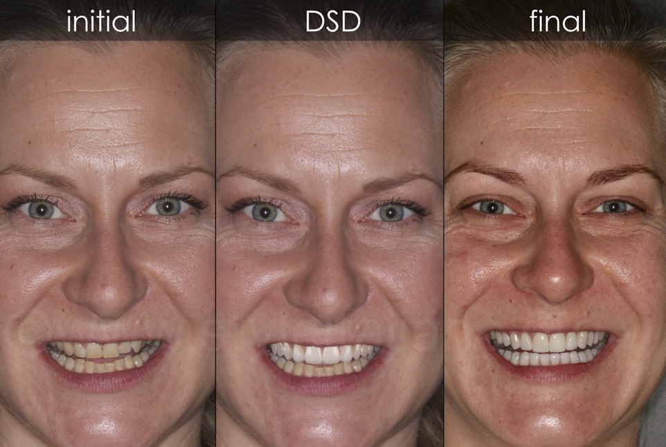 before and after full mouth smile makeover