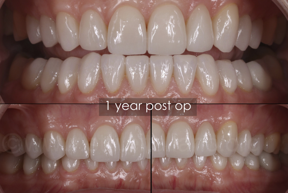 one year after full mouth rehabilitation