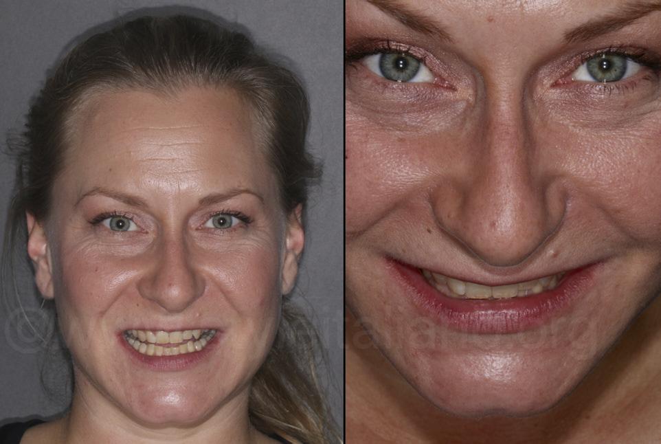 facial smile analysis