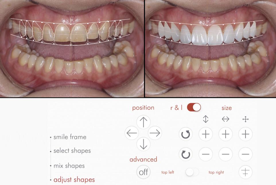 dsdapp digital smile design