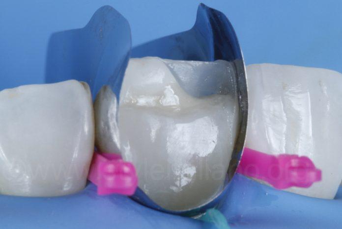 direct veneers incisor
