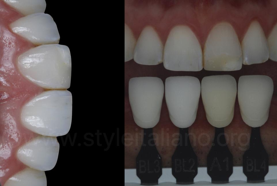 dental photography and polarisation