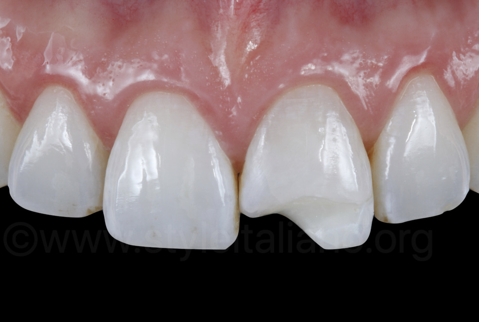 ourth class cavity on central incisor
