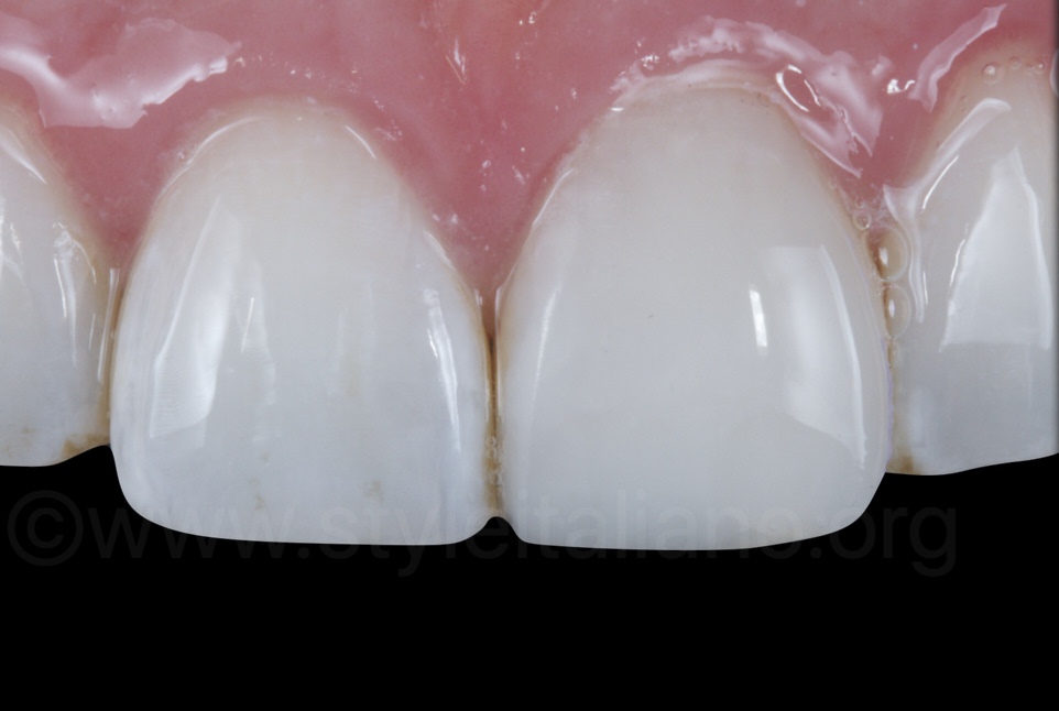direct composite veneer on central incisor