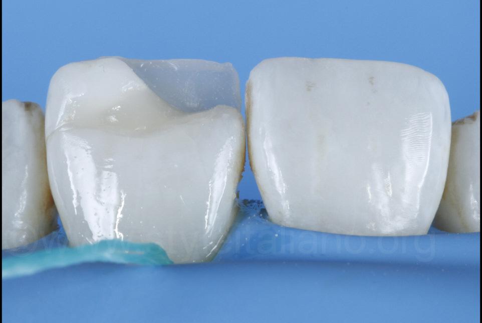 composite palatal shell