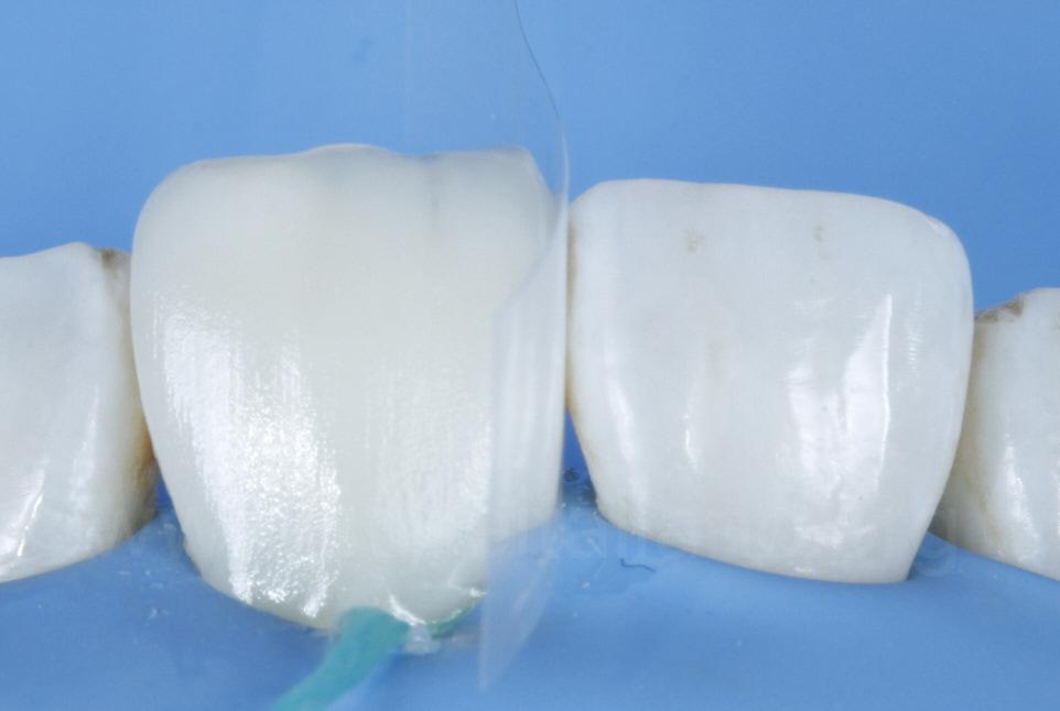 composite resin layering and transparent matrix