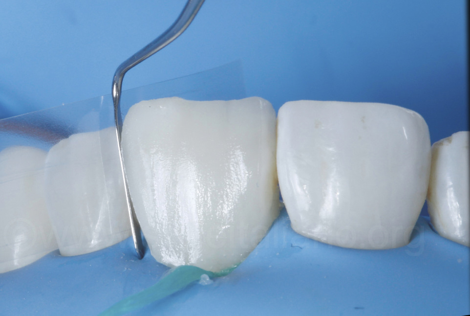 composite resin proximal layering with matrix