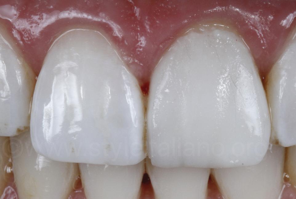 composite resin veneer before polishing