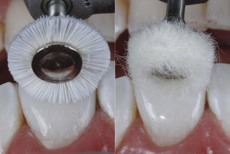 brush and felt for composite resin polishing