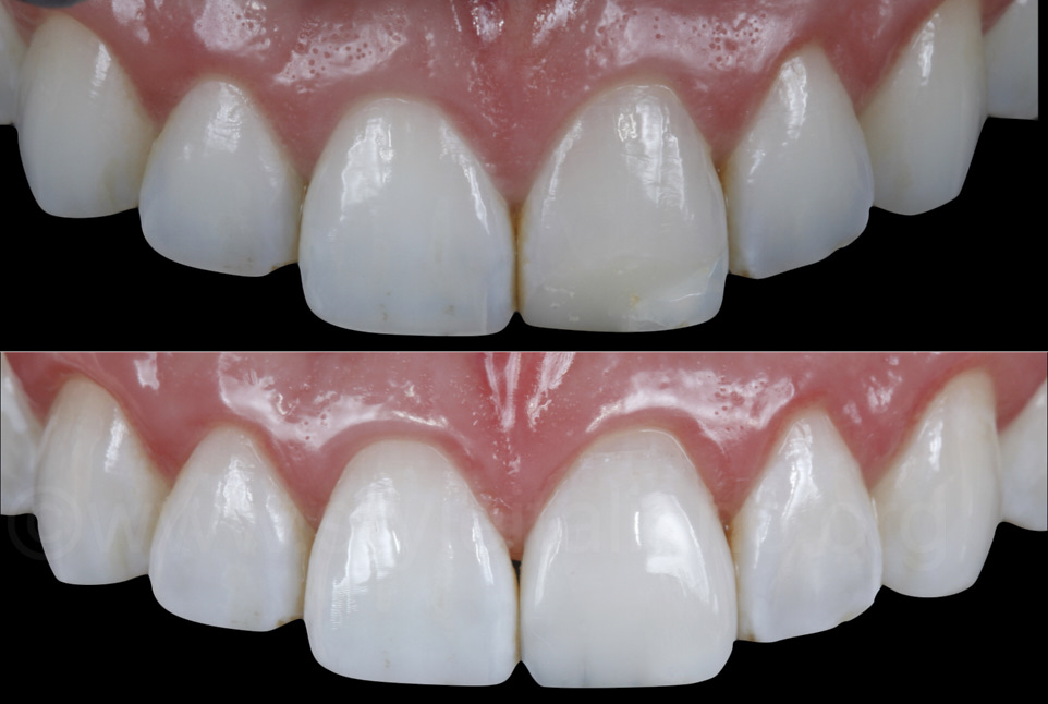 before and after composite resin veneer restoration The Before & After.