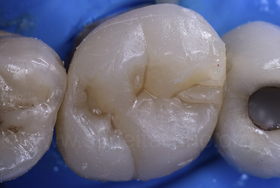 cemented composite overlay on upper molar