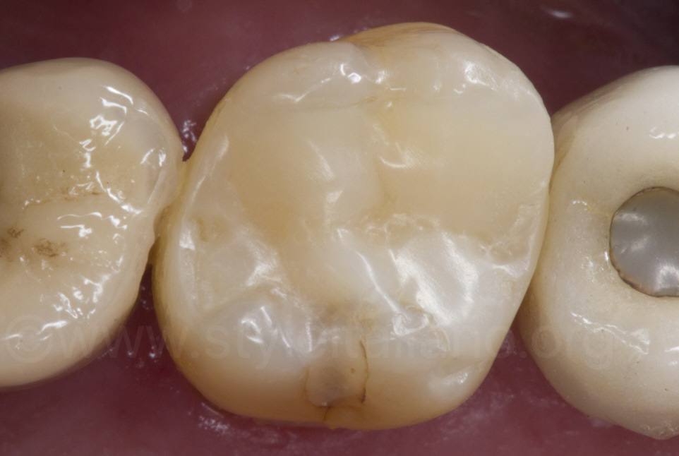 composite resin build up of upper molar