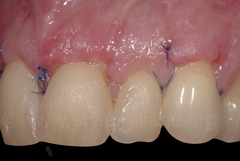 teeth and gums one week after periodontal surgery