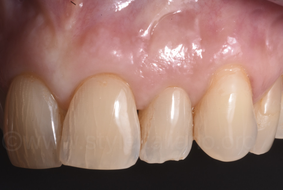 teeth and gums after root coverage surgery