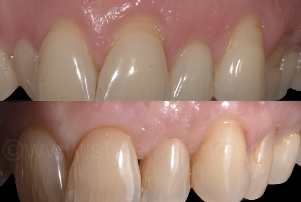 gingival recessions before and after periodontal surgery