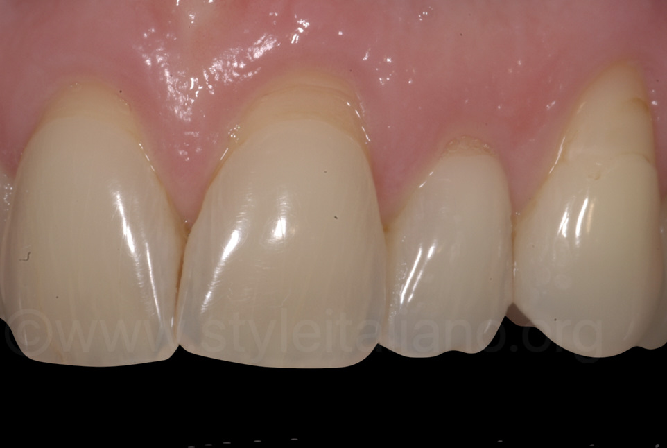 multiple gingival recessions