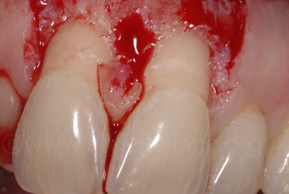open flap on central incisors
