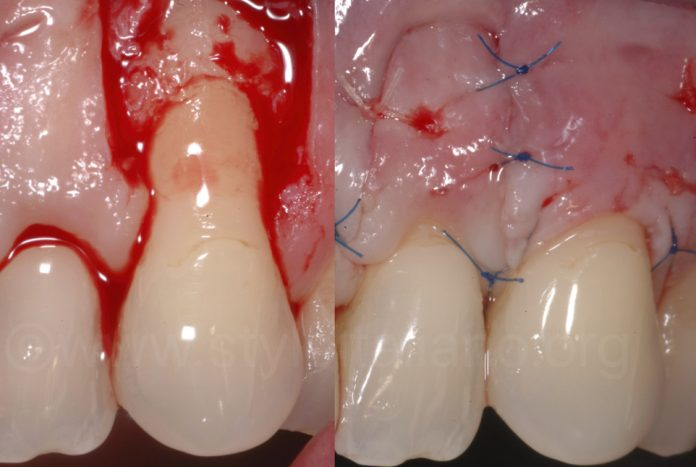 open flap for root coverage and suture