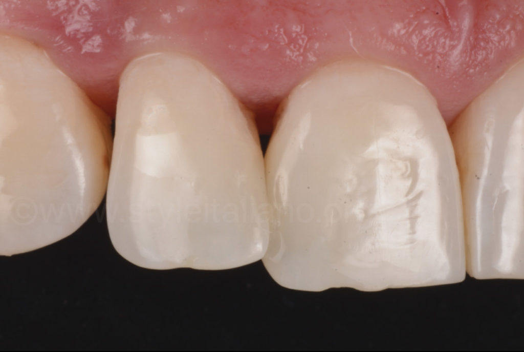 buccal view 3m