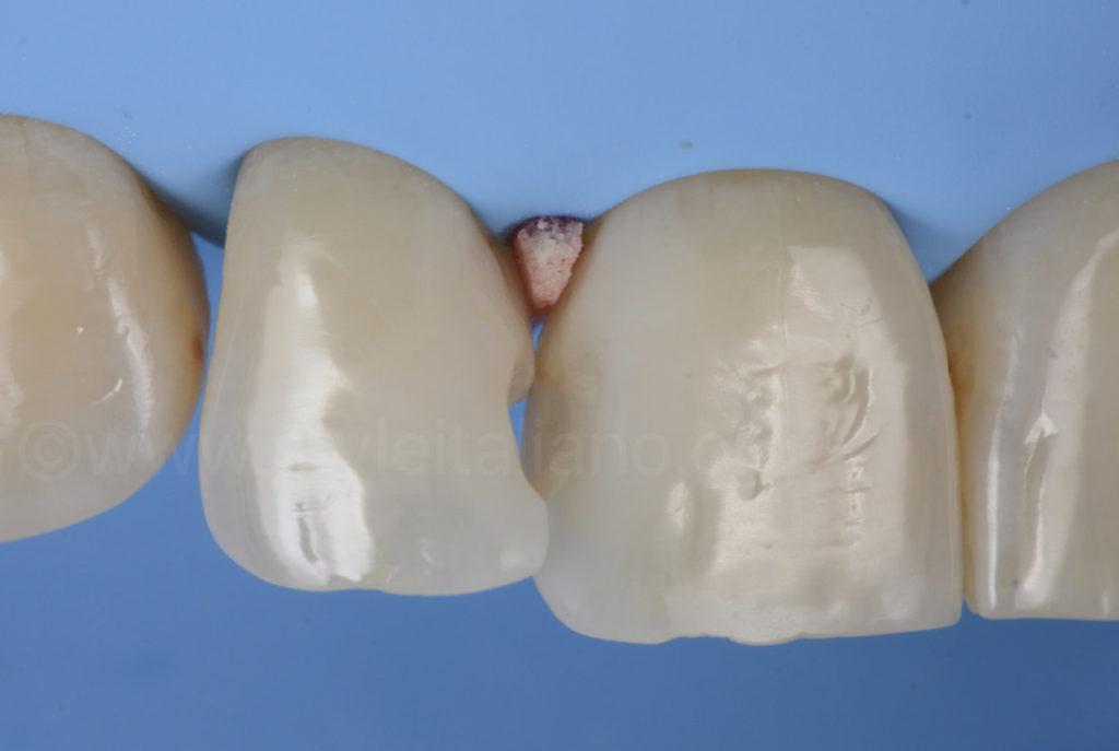 separating teeth style italiano