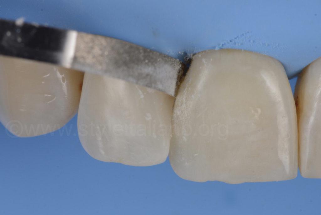 teeth style italiano