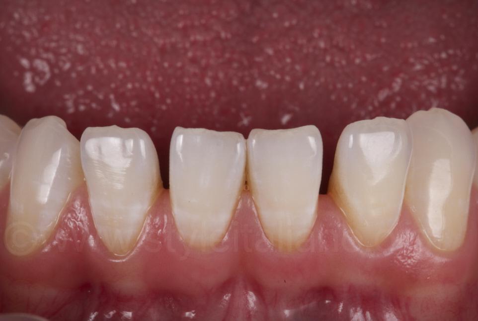 diastemata between lower incisors