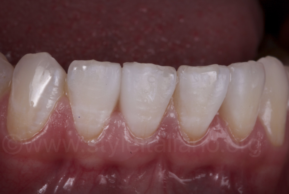 mock-up on lower incisors