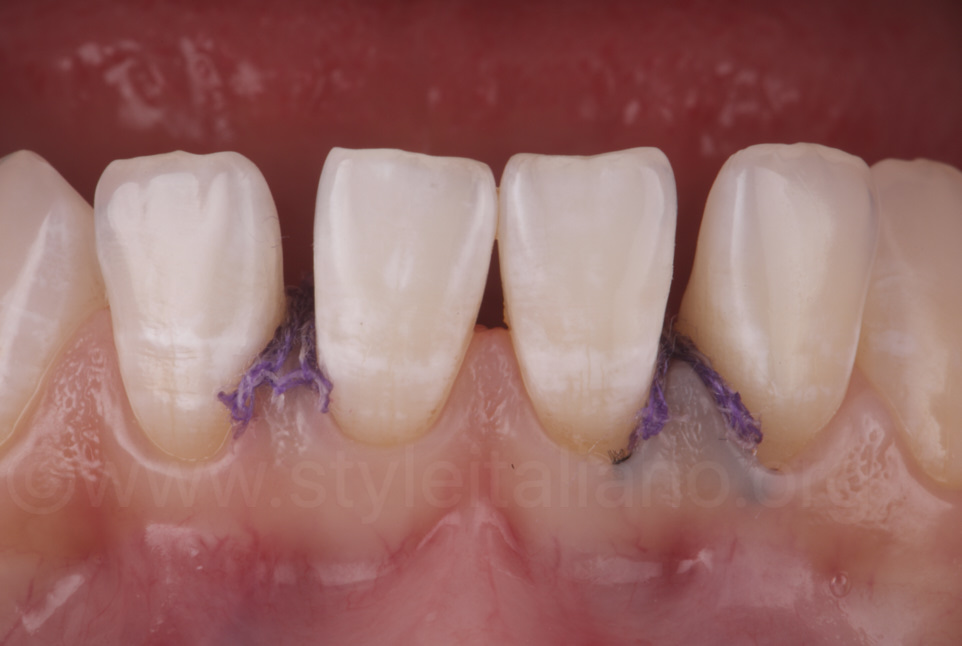 second retraction cord inside gingival sulcus