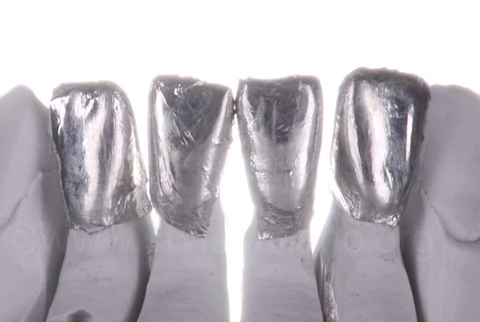platinum foil coated model