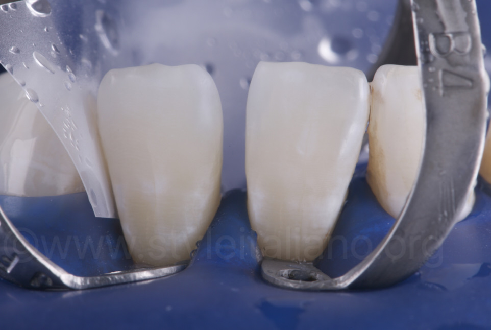lower incisors under rubber dam isolation