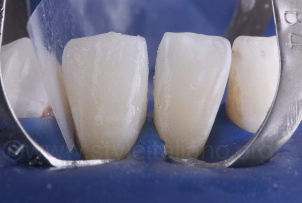 bonding veneers on lower incisors
