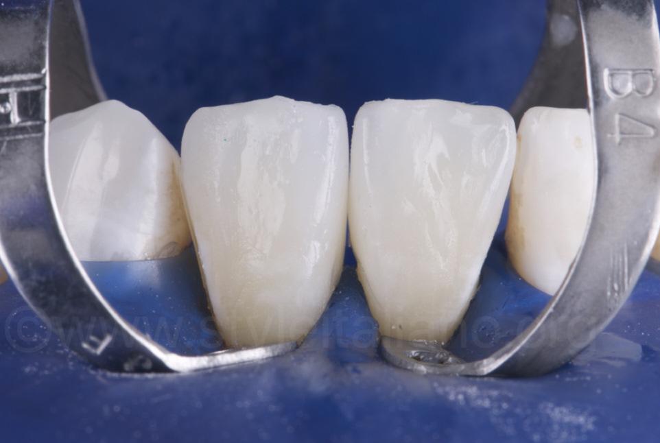 ceramic veneers cemented on lower incisors