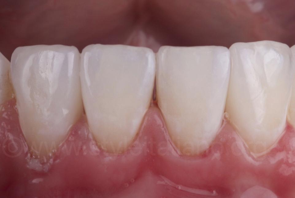 partial veneers on lower incisors