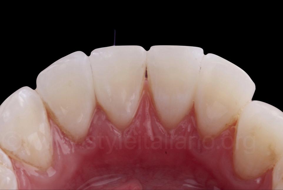 lingual view of proximal veneers