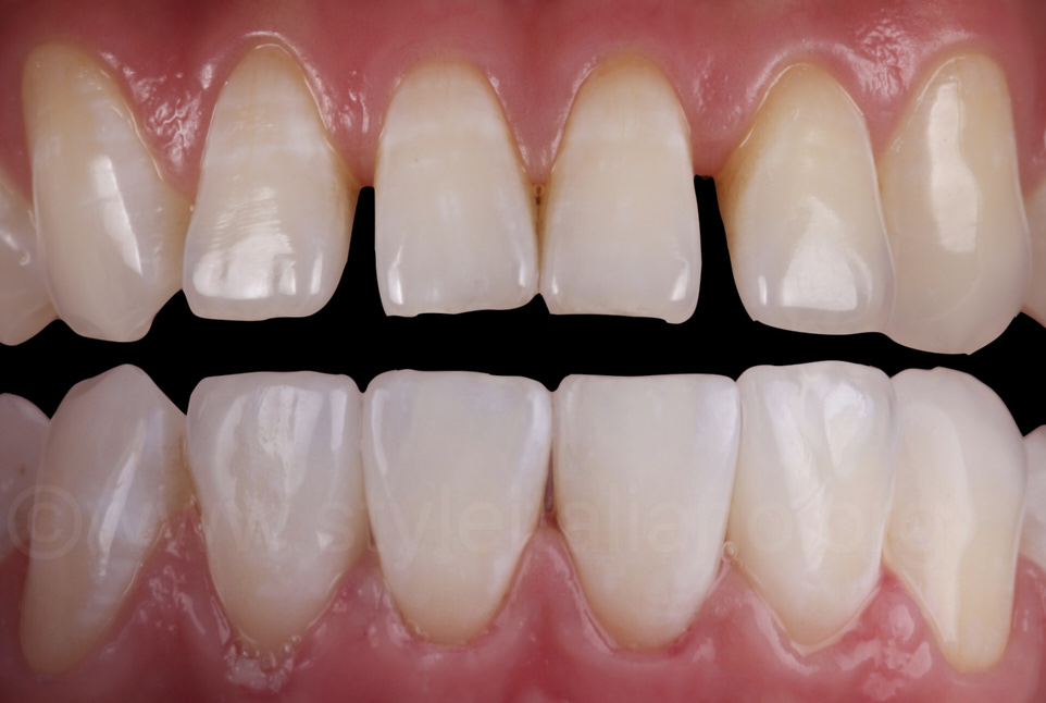 before and after lower incisor veneers
