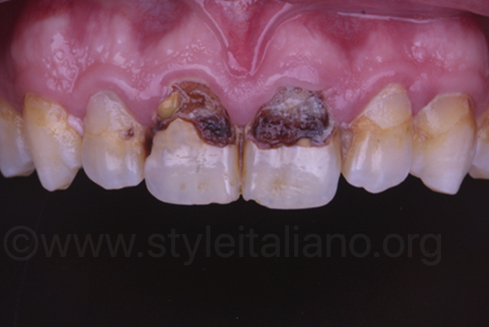 central incisors with stained carious decay