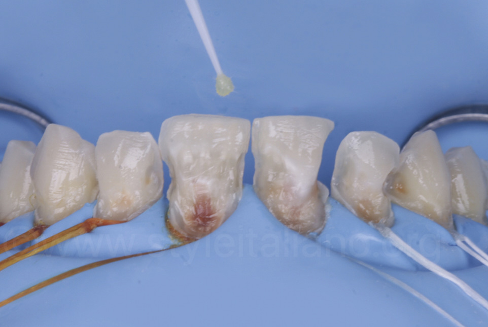 bonding enamel and dentin with a microbrush